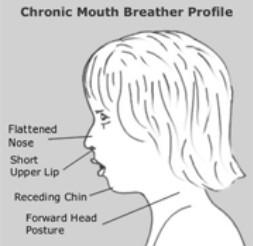 Oral rest posture: A key piece of the obstructive sleep apnea puzzle